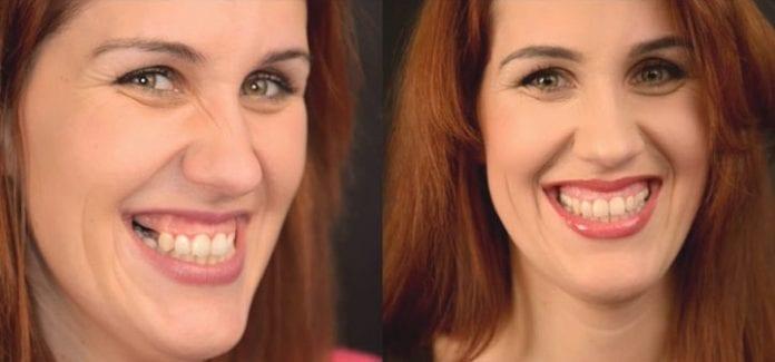 Nový úsmev pani Zuzany